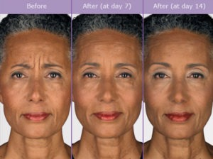 botox before and after pictures