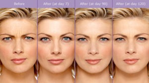 Botox | Laugh Line Reduction | Plastic Surgery Pasadena Burbank CA