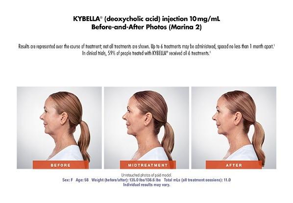 kybella2