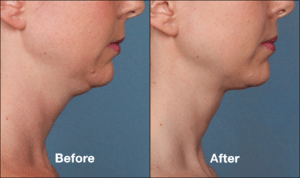 How long do Kybella Injections last? | Glendale | Pasadena Med Spa