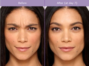 What is Botox Used for? | Pasadena Cosmetic Surgery | Burbank Med Spa