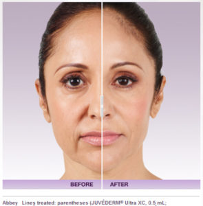 juvederm 4 295x300 - What is Juvederm Injectable Filler used for?