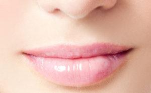 lip 300x186 - How Long Does Juvederm Filler Last?