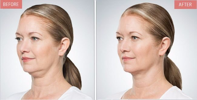 before and after kybella model 2 compressed 1 - Kybella