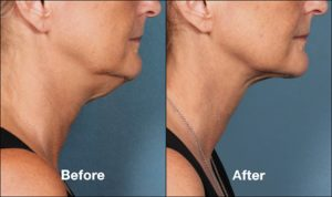 KybellaPatientPRI4BeforeAfterSideView 300x178 - Facial & Neck Liposculpture