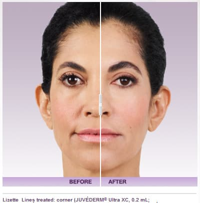 juvederm 3 - Cheek Enhancement