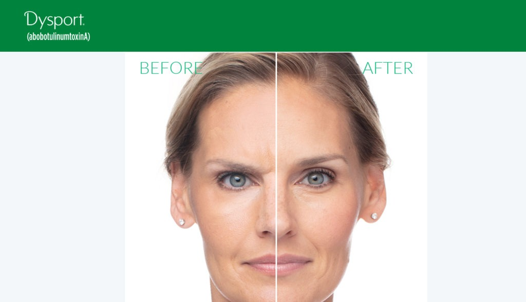 Dysport Before After Photo gallery 1024x588 - Wrinkle Relaxers: Botox, Dysport, Xeomin