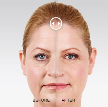Juvederm before and after pics - Soft Tissue Fillers: Juvederm, Restylane, Voluma