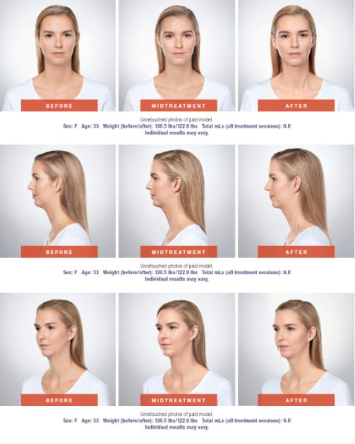 Kybella Before and After photo 503x630 - Kybella