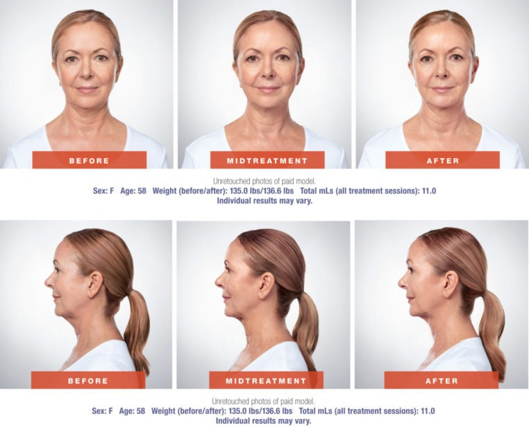 Kybella Before and After pictures 762x630 - Kybella
