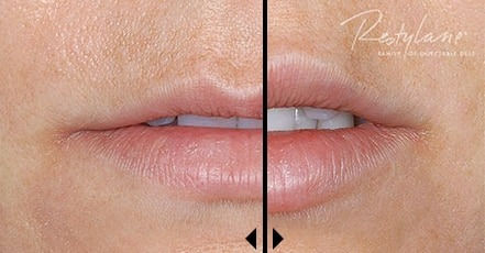 Restylane Cost before and after photos - Soft Tissue Fillers: Juvederm, Restylane, Voluma