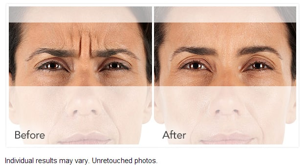 Xeomin Wrinkle Reduction Before After Photo - Wrinkle Relaxers: Botox, Dysport, Xeomin