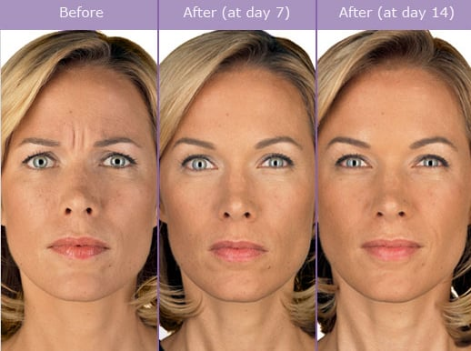 botox before and after picture - Wrinkle Relaxers: Botox, Dysport, Xeomin