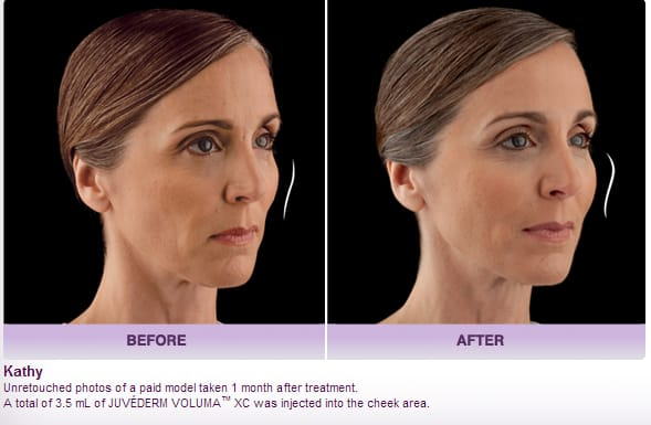 juvederm voluma before and after picture - Soft Tissue Fillers: Juvederm, Restylane, Voluma