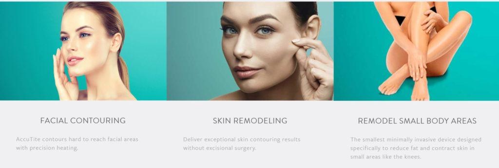 AccuTite skin tightening and body contouring 1024x345 - What is Accutite skin tightening and body contouring?